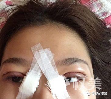 长沙朱小平整形医院做的双眼皮手术经历分享